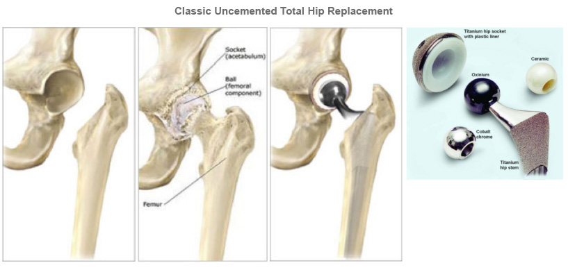 Hip Replacement Fortis Healthcare